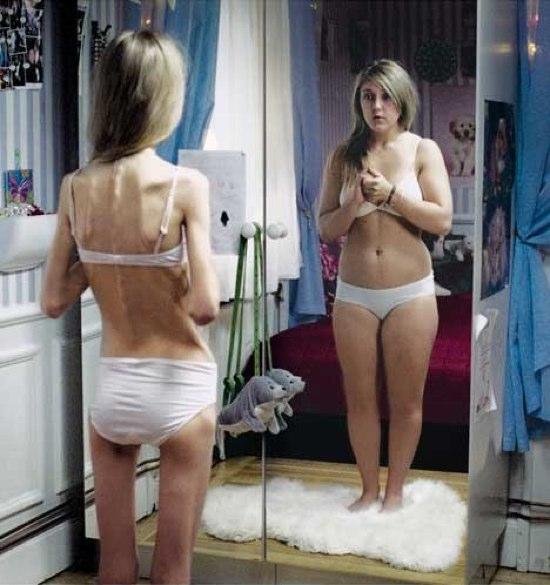 le_reflet_d_une_anorexique.jpg